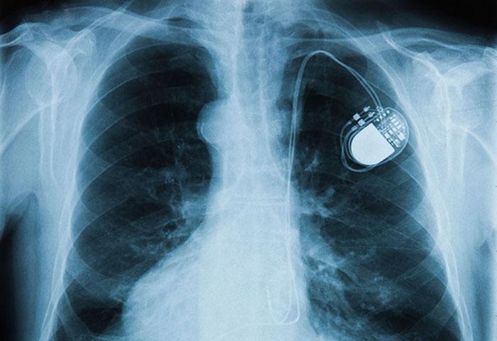 حمله هکرها به قلب انسان