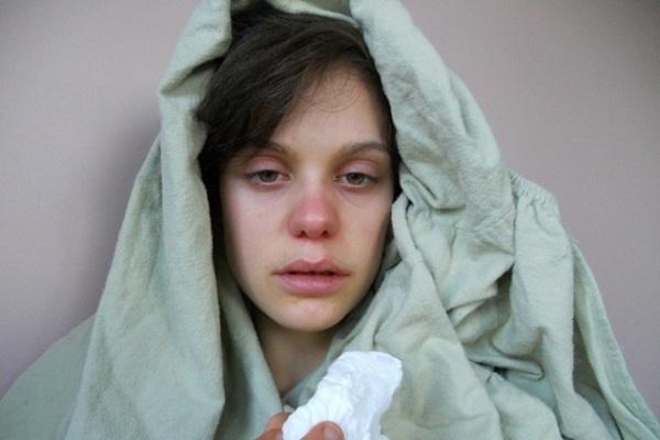 تشخیص بیماری از روی چهره