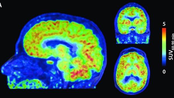دانشمندان برای اولین بار موفق شدند، از بیان ژن در مغز یک انسان زنده عکسبرداری کنند