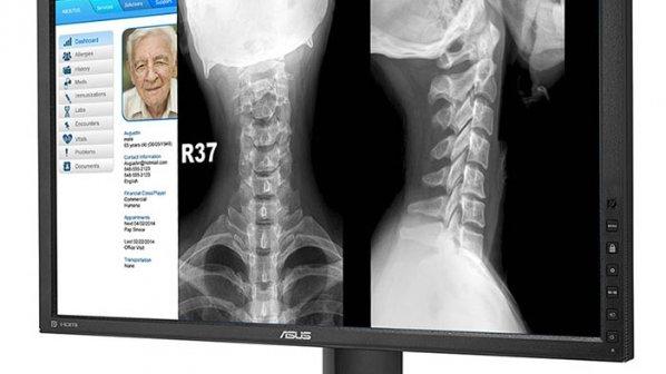 معرفی نمایشگر پزشکی ایسوس HA2402