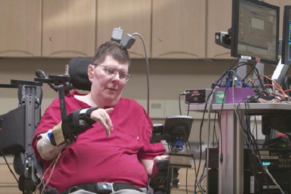 ایمپلنتهای عصبی ARM برای معلولان