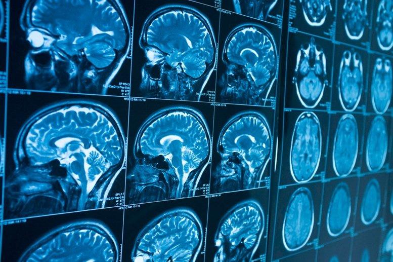 هوش مصنوعی ده سال زودتر از بروز نشانهها، آلزایمر را تشخیص میدهد