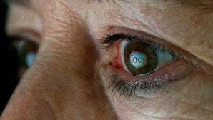 لنز کاشتنی گوگل برای چشمها