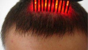 فناوریهای عجیب زیبایی: لیزرهای تقویت مو