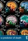 سن مغز میتواند زمان مرگ انسان را بگوید